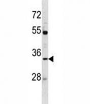 AQP3 antibody western blot analysis in MDA-MB453 lysate