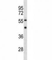 YY1 antibody western blot analysis in MDA-MB453 lysate. Observed molecular weight: 68/40 kDa.
