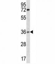 XRCC2 antibody western blot analysis in ZR-75-1 lysate