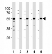 Western blot analysis of lysate from (1) A431, (2) RD, (3) mouse NIH3T3, (4) mouse C2C12, and (5) rat PC-12 cell line using Src antibody at 1:1000.