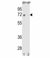 Western blot analysis of ER antibody pre-incubated without (Lane 1) and with (2) blocking peptide in K562 lysate. Predicted molecular weight: 65-70 kDa.
