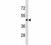 CCR5 antibody western blot analysis with human MDA-MB231 lysate. Predicted molecular weight ~41 kDa.