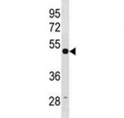 TUBG1 antibody western blot analysis with human HepG2 lysate. Predicted molecular weight ~51 kDa.