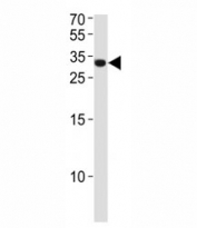 ASCL1 antibody western blot analysis in NCI-H460 lysate. Observed molecular weight ~34 kDa.