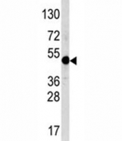Western blot analysis of AP2 antibody and NCI-H460 lysate. Predicted molecular weight ~47 kDa.