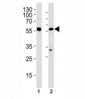 Western blot analysis of (1) HL-60 and (2) U251 MG cell line using p65 antibody at 1:1000.