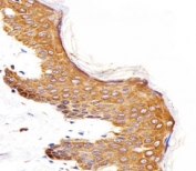 IHC analysis of FFPE human skin section using Epidermal Growth Factor Receptor antibody; Ab was diluted at 1:25.
