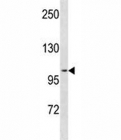 PR antibody western blot analysis in ZR-75-1 lysate. Expected molecular weight: 82-94 kDa (isoform A) and 99-120 kDa (isoform B).
