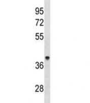 ACAA1 antibody western blot analysis in human 293 lysate. Predicted molecular weight ~44 kDa.