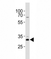 CCND1 antibody western blot analysis in HeLa lysate. Predicted molecular weight: 32-36 kDa.