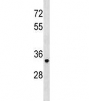 TRAP antibody western blot analysis in human A2058 lysate. Predicted molecular weight ~36 kDa.
