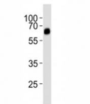 Western blot analysis of lysate from rat uterus tissue lysate using ALK3 antibody diluted at 1:1000.