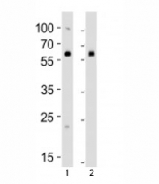 Western blot analysis of lysate from 1) human 293 and 2) mouse NIH3T3 cell line using BMPR1A antibody at 1:1000. Predicted molecular weight ~60 kDa.
