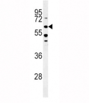 ALK3 western blot analysis in HeLa lysate. Predicted molecular weight ~60kDa.