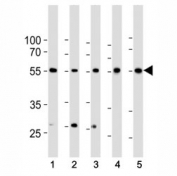 Western blot analysis of lysate from 1) HeLa, 2) K562, 3) MCF-7 cell line, 4) human liver and 5) mouse liver tissue lysate using BMPR1A antibody at 1:1000. Predicted molecular weight ~60 kDa.