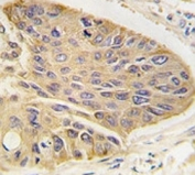 IHC analysis of FFPE human lung carcinoma tissue stained with anti-MAP2 antibody