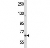 Western blot analysis of MAP-2 antibody and MCF-7 lysate. MAP2 can be observed at ~280 kDa (isoforms A & B) and ~70 kDa (isoform C).