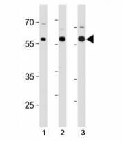 p65 antibody western blot analysis in (1) SK-BR-3, (2) mouse Neuro-2a cell line and (3) mouse testis tissue lysate.