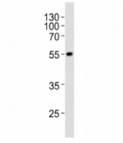 Western blot analysis of lysate from WiDr cell line using PDX1 at 1:1000. Predicted molecular weight ~54kDa.