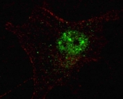 Fluorescent confocal image of SY5Y cells stained with PDX1 antibody. Alexa Fluor 488 conjugated secondary (green) was used. Nuclei were counterstained with Hoechst 33342 (blue) (10 ug/ml, 5 min). Note the highly specific localization of the PDX1 immunosignal to the nucleus.