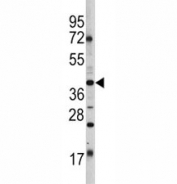 Western blot analysis of Oct-4 antibody and HL-60 lysate. Predicted molecular weight ~38/30kDa (isoform A/B).
