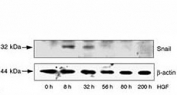 HepG2 cells were incubated with HGF for the indicated time periods. LiCl and MG132 were added 8 hr before lysis of the cells. SNAIL protein and beta actin (loading control) levels were analyzed by western blot.