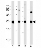 PGP 9.5 antibody western blot analysis in (1) U266, (2) NCI-H1299, (3) mouse Neuro-2a cell line and (4) mouse brain tissue lysate. Predicted molecular weight ~25 kDa.