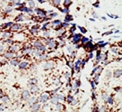 IHC analysis of FFPE human breast carcinoma tissue stained with the BAP1 antibody