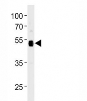 Anti-p53 antibody western blot analysis in 293 lysate