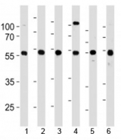 YY1 antibody western blot analysis in 1) 293, 2) HL-60, 3) SiHa, 4) K562, 5) THP-1 and 6) U266 lysate. Predicted molecular weight ~45 kDa, observed molecular weight 45~65 kDa.