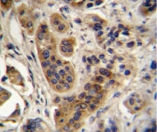 ACOX1 antibody analysis in formalin fixed and paraffin embedded human bladder carcinoma.