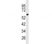 Western blot analysis of ACSL3 antibody and human 293 lysate. Predicted molecular weight ~80 kDa.