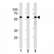 KLF4 antibody western blot analysis in (1) HeLa,(2) MCF-7 and (3) SW480 lysate. Predicted molecular weight: 50-60 kDa + possible ~75 kDa (phosphorylated form).