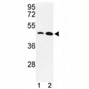 Western blot analysis of KLF4 antibody and MDA-MB231, NCI-H460 lysate. Predicted molecular weight: 50-60 kDa + possible ~75 kDa (phosphorylated form).