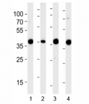 Western blot analysis of lysate from 1) 293, 2) RD, 3) mouse NIH3T3 and 4) rat L6 cell line using Aldolase antibody at 1:1000. Predicted molecular weight ~40 kDa.