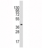 Western blot analysis of ALDOA antibody and mouse liver tissue lysate. Predicted molecular weight ~40 kDa.