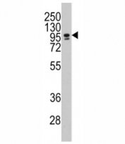 Western blot analysis of CEBPZ / CBF antibody and NCI-H460 lysate. Predicted molecular weight: ~120kDa.