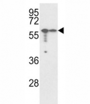 Western blot analysis of VIM antibody and A2058, A375 lysate.