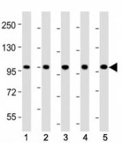 Western blot testing of LGR-5 antibody at 1:2000 dilution. Lane 1: mouse skeletal muscle; 2: rat skeletal muscle; 3: HeLa; 4: HepG2; 5: SH-SY5Y lysate; Predicted band size : 100 kDa.