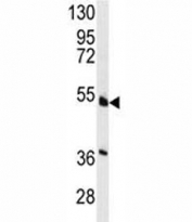 Western blot analysis of HNF4A antibody and NCI-H460 lysate. Predicted molecular weight ~50 kDa.