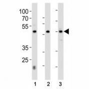 HNF4A antibody western blot analysis in 1) 293, 2) HepG2 cell line and 3) rat liver tissue lysate. Predicted molecular weight ~50kDa.