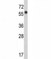 Western blot analysis of WDR1 antibody and CEM lysate. Predicted molecular weight ~66 kDa.