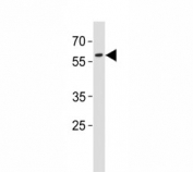 PAX3 antibody western blot analysis in A431 lysate. Predicted molecular weight: there are 7 isoforms ranging from 22~56kDa.