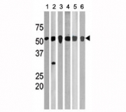 Western blot testing of p-CHK1 antibody and 1. A2058, 2. mouse brain, 3. Ramos, 4. Jurkat, 5. HL-60, and 6. HeLa lysate. Predicted molecular weight ~54kDa.