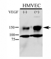 Phospho-KDR antibody used in western blot to detect phosphorylated KDR/FLK1 in HMVEC lysate. Endothelial cells were stimulated with 50ug/ml VEGF for 5min and Ab used at 1:500. Predicted molecular weight: ~152 (immature), 180-200 kDa (intermediate) and 220-230 kDa (mature).