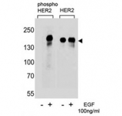 Western blot analysis of extracts from A431 cells,untreated or treated with EGF (100ng/ml), using phospho-HER2 antibody (left) or nonphos Ab (right)