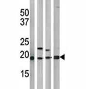 The p21 antibody used in western blot with HeLa (1), Y79 (2), T47D (3), and 293 (4) lysate.