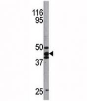 Western blot analysis of p53 antibody and A2058 lysate