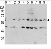 Western blot analysis of phospho c-Myc antibody and human TPA activated HeLa cells/lysate (0: without TPA; 1: 60ug/ml TPA-15min; 2: 60ug/ml-30min; 3: 60ug/ml-45min; 4: 125ug/ml-15min; 5: 125ug/ml-30min; 6: 125ug/ml-45min; 7: 250ug/ml-15min; 8: 250ug/ml-30min; 9: 250ug/ml-45min)