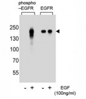 Western blot analysis of extracts from A431 cells, untreated or treated with EGF, using phospho-EGFR antibody (left) or nonphos Ab (right)